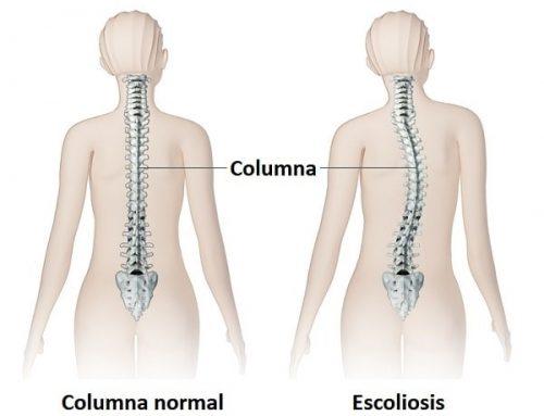 La escoliosis