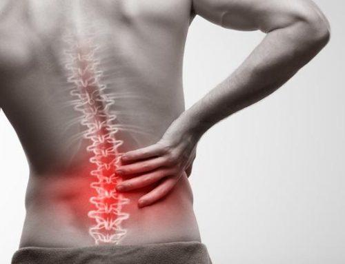 Ejercicio terapéutico para el dolor lumbar