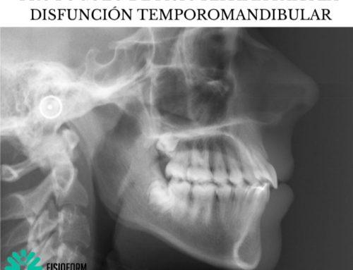 PROTOCOLO DE FISIOTERAPIA PARA LA DISFUNCIÓN TEMPOROMANDIBULAR