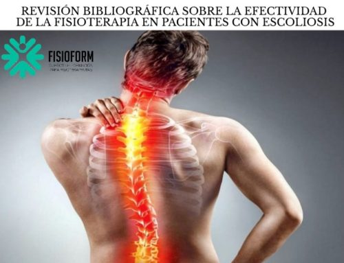 Revisión bibliográfica sobre la efectividad de la fisioterapia en pacientes con escoliosis