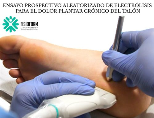 ENSAYO PROSPECTIVO ALEATORIZADO DE ELECTRÓLISIS PARA EL DOLOR PLANTAR CRÓNICO DEL TALÓN